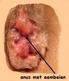 aambeien zwanger